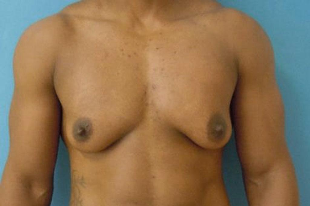 Frau zu Mann OP Zürich Brustverkleinerung Mastektomie. 01