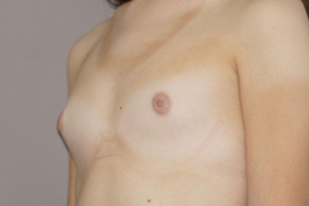 Mann zu Frau OP Zürich Brustvergrößerung Post-OP 03