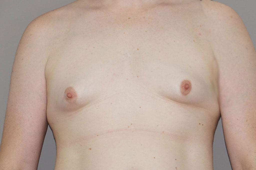 Mann zu Frau OP Zürich Brustvergrößerung Transgender-Patient 01
