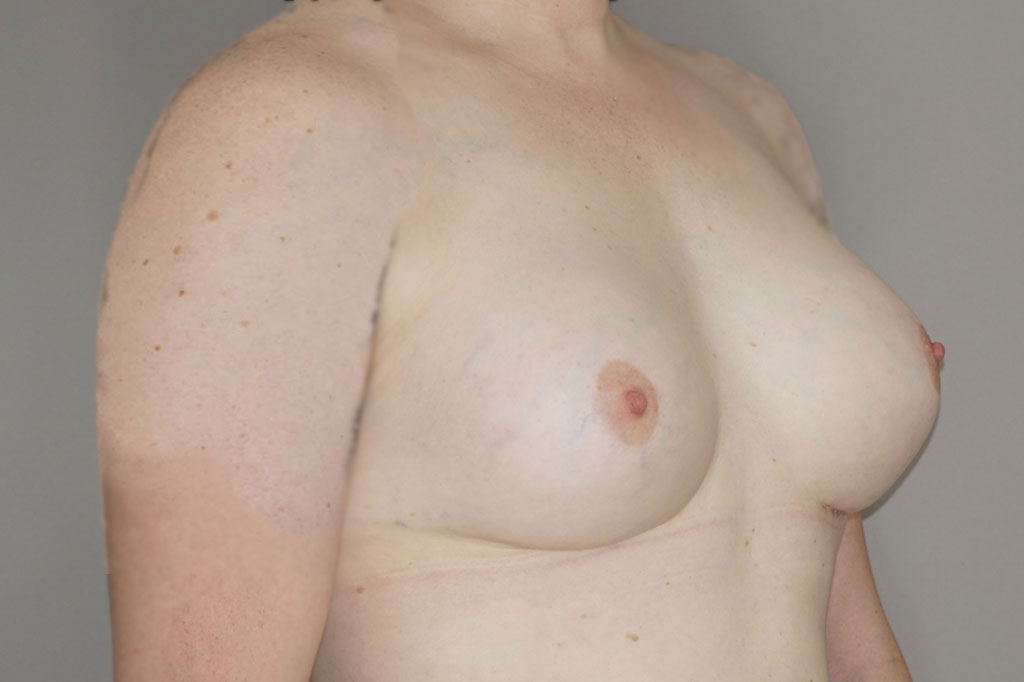 Mann zu Frau OP Zürich Brustvergrößerung Transgender-Patient 04
