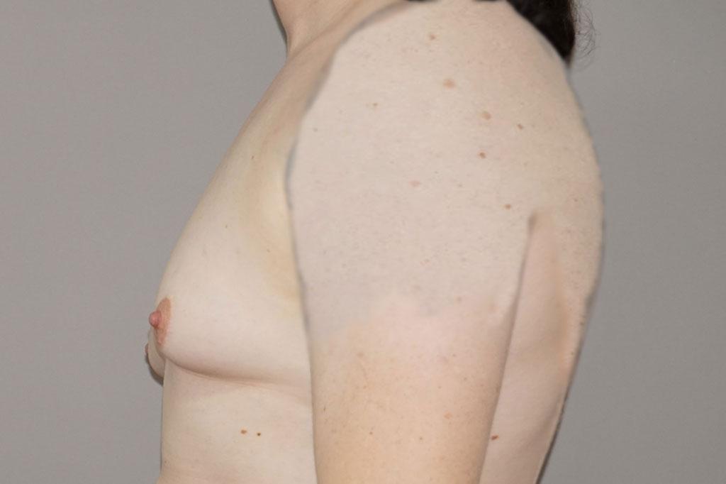 Mann zu Frau OP Zürich Brustvergrößerung Transgender-Patient 05