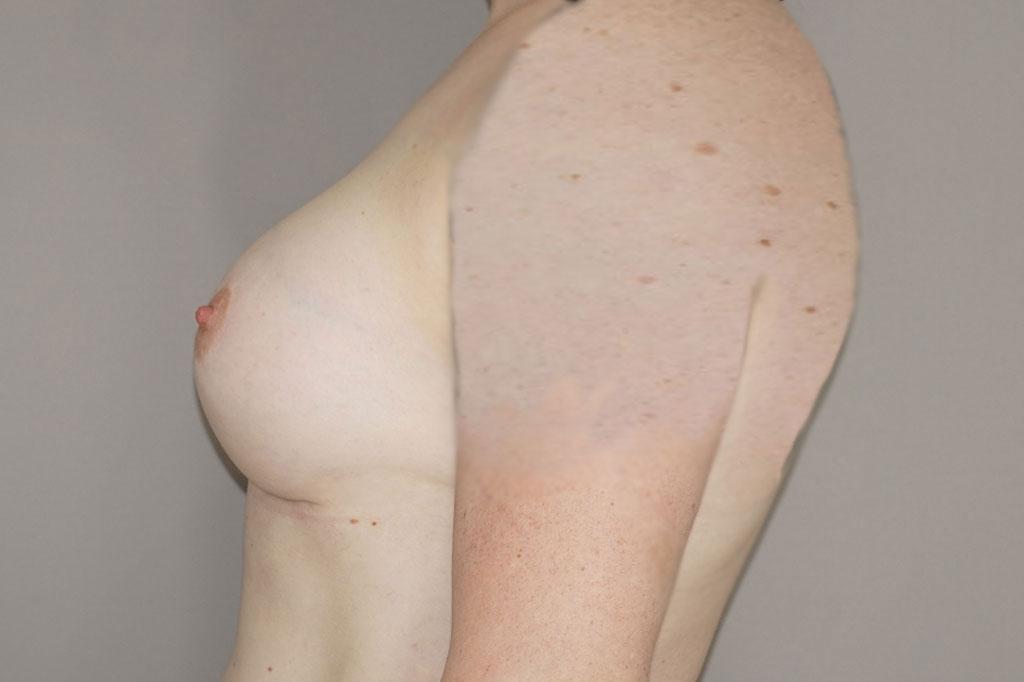 Mann zu Frau OP Zürich Brustvergrößerung Transgender-Patient 06