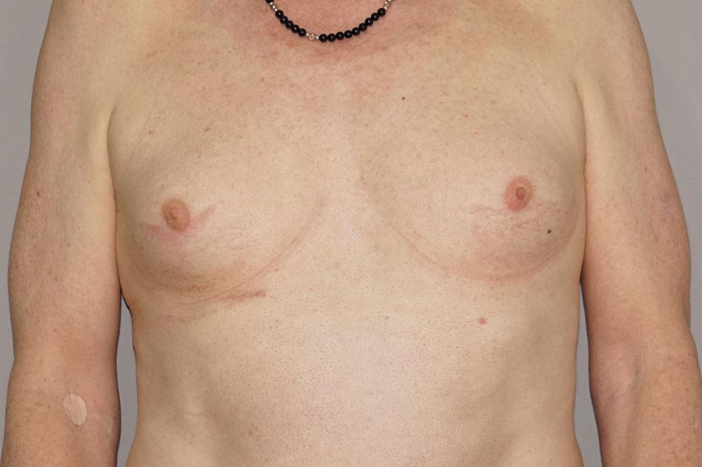 Mann zu Frau OP Zürich Brustvergrößerung 29-jähriger Transgender-Patient 01