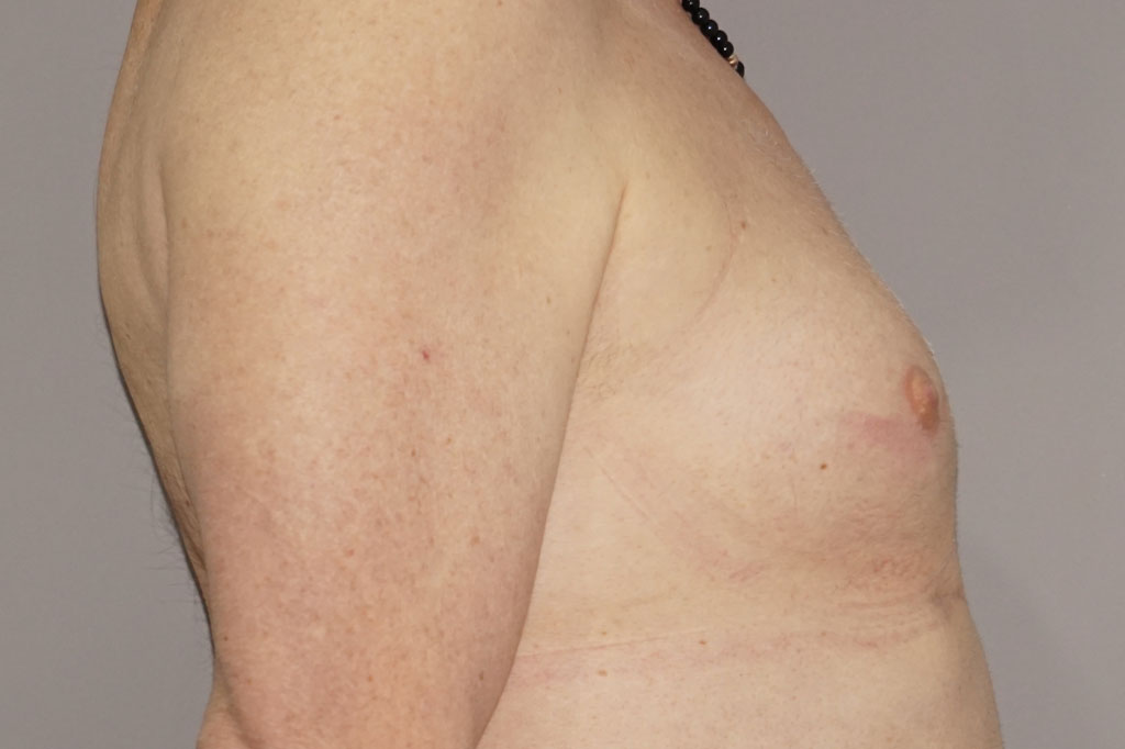 Mann zu Frau OP Zürich Brustvergrößerung 29-jähriger Transgender-Patient 03