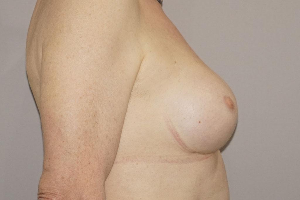 Mann zu Frau OP Zürich Brustvergrößerung 29-jähriger Transgender-Patient 04
