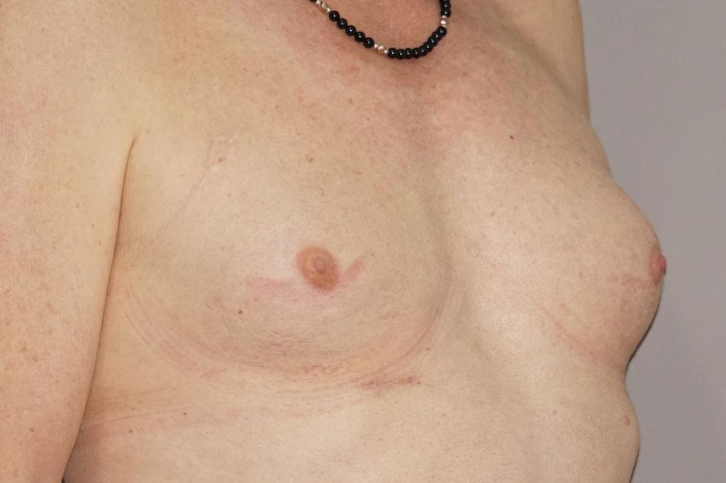 Mann zu Frau OP Zürich Brustvergrößerung 29-jähriger Transgender-Patient 05