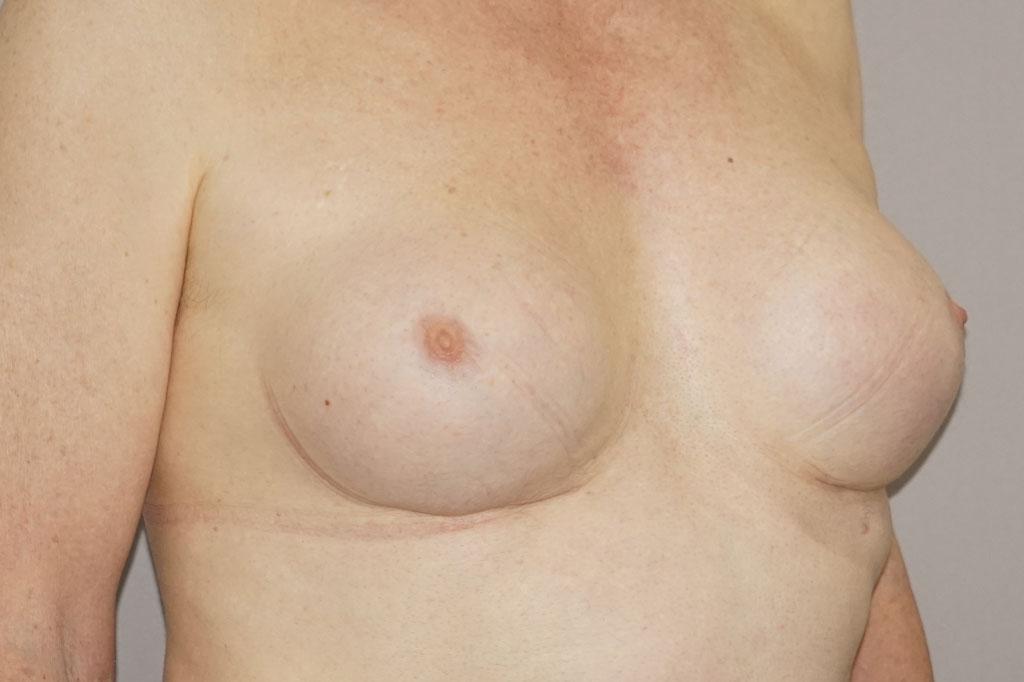 Mann zu Frau OP Zürich Brustvergrößerung 29-jähriger Transgender-Patient 06
