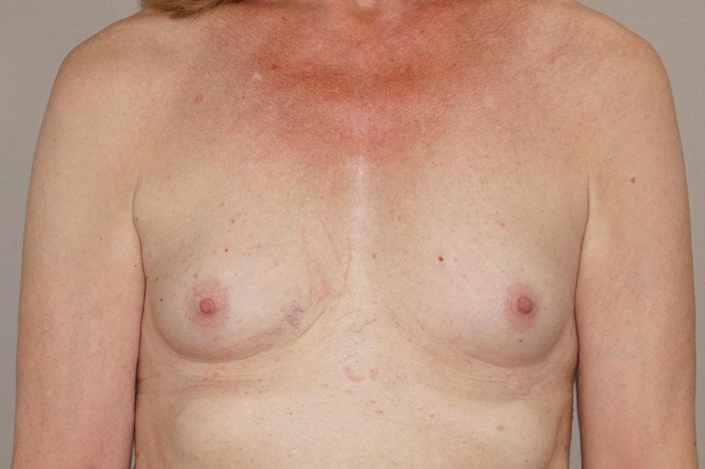 Mann zu Frau OP Zürich Brustvergrößerung 56-jähriger Transgender-Patient 01