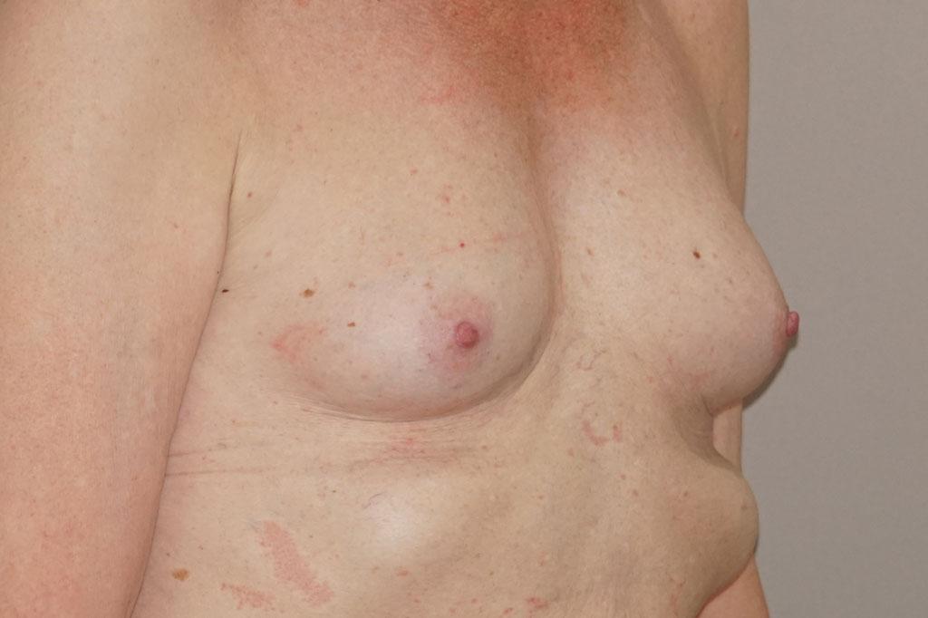 Mann zu Frau OP Zürich Brustvergrößerung 56-jähriger Transgender-Patient 03
