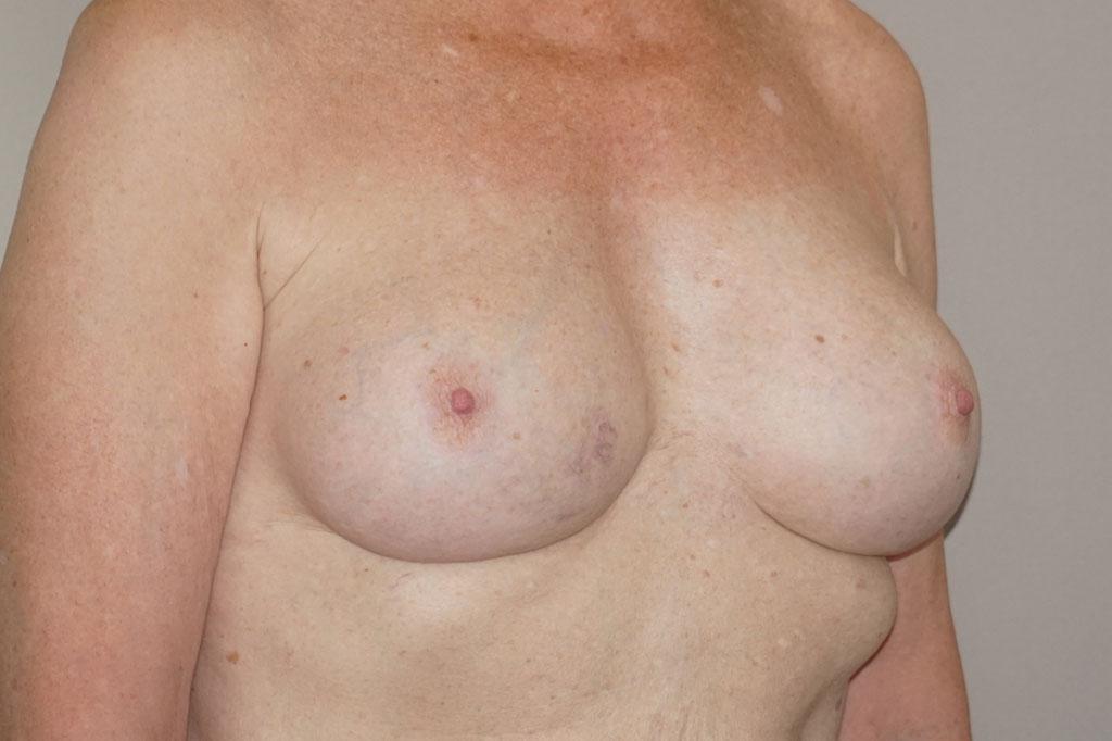 Mann zu Frau OP Zürich Brustvergrößerung 56-jähriger Transgender-Patient 04