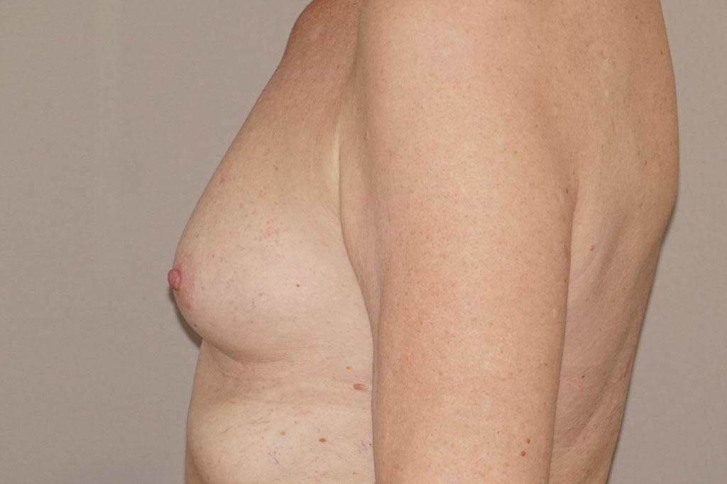 Mann zu Frau OP Zürich Brustvergrößerung 56-jähriger Transgender-Patient 05
