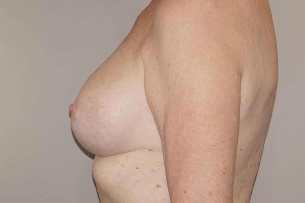 Mann zu Frau OP Zürich Brustvergrößerung 56-jähriger Transgender-Patient 06
