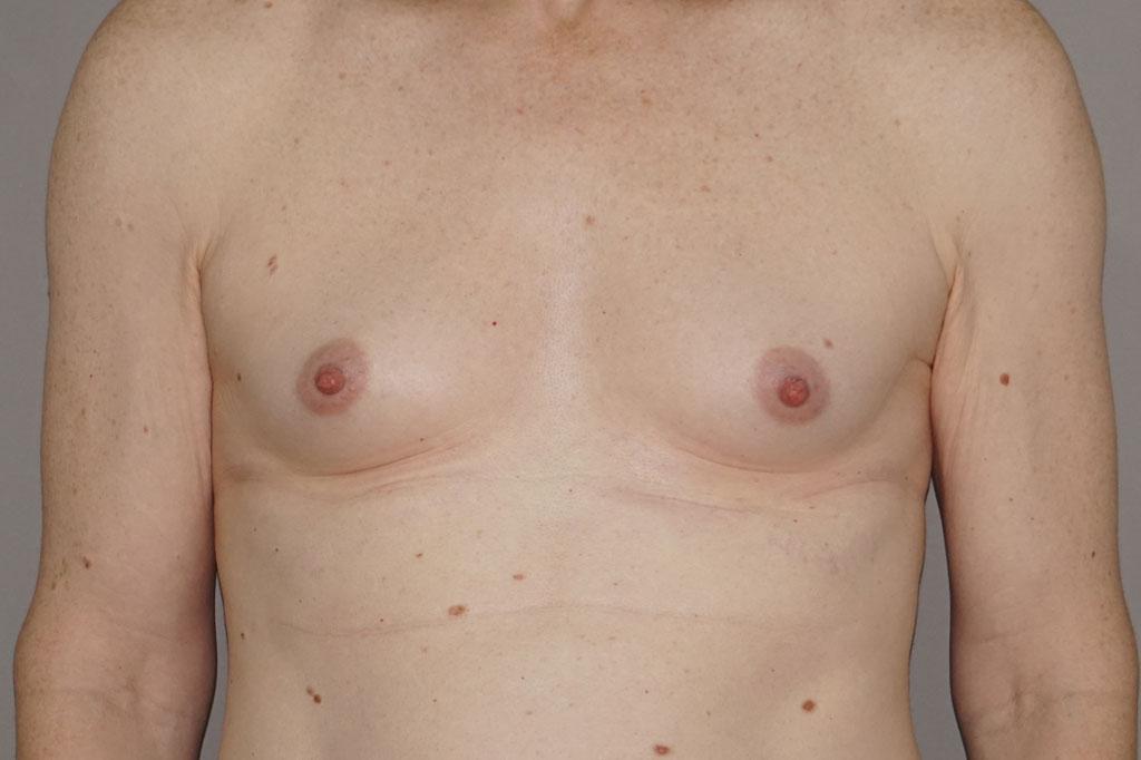 Mann zu Frau OP Zürich Brustvergrößerung 26-jähriger Transgender-Patient 01