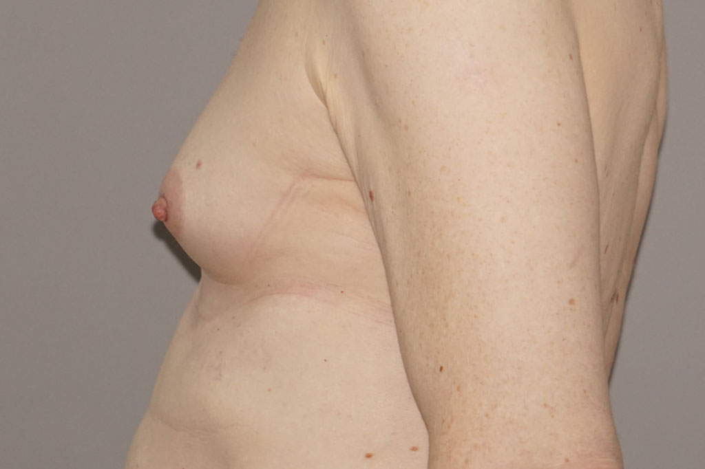 Mann zu Frau OP Zürich Brustvergrößerung 26-jähriger Transgender-Patient 03