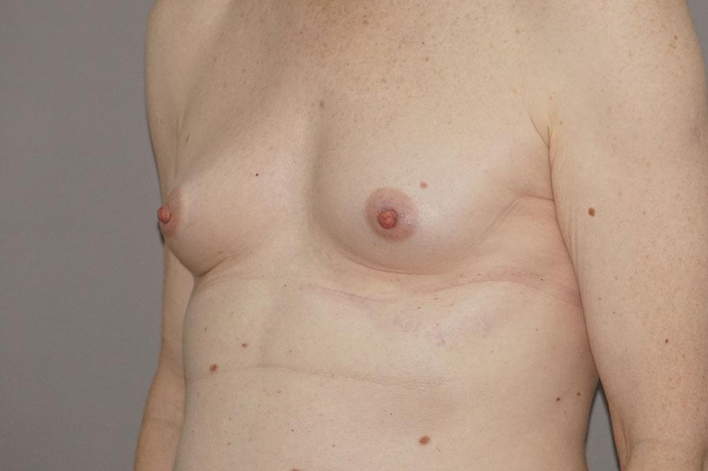 Mann zu Frau OP Zürich Brustvergrößerung 26-jähriger Transgender-Patient 05