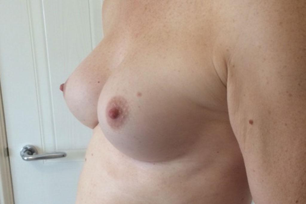 Mann zu Frau OP Zürich Brustvergrößerung 26-jähriger Transgender-Patient 06