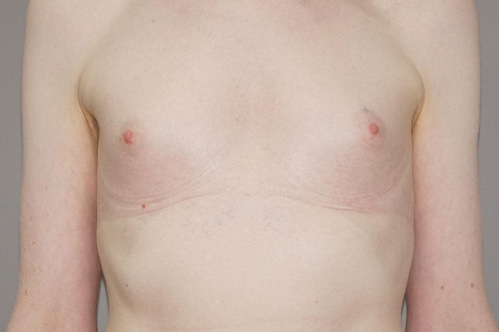 Mann zu Frau OP Zürich Wiederaufnahme einer Brustvergrößerung 01