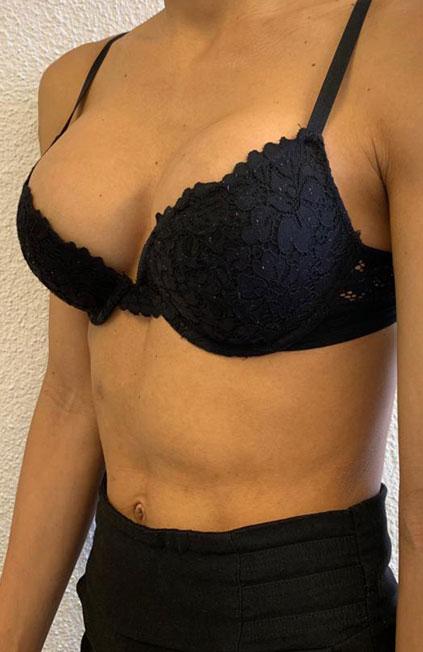 Mann zu Frau OP Zürich Wiederaufnahme einer Brustvergrößerung 03