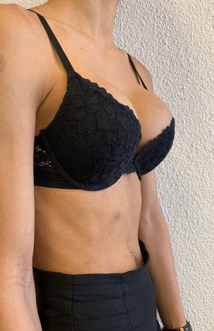 Mann zu Frau OP Zürich Wiederaufnahme einer Brustvergrößerung 04
