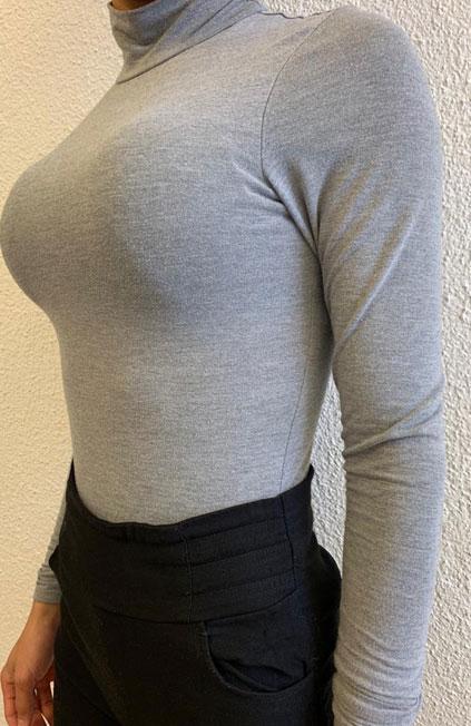 Mann zu Frau OP Zürich Wiederaufnahme einer Brustvergrößerung 05