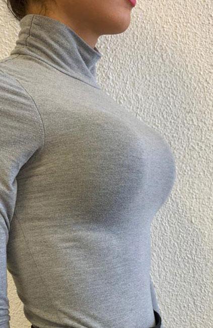 Mann zu Frau OP Zürich Wiederaufnahme einer Brustvergrößerung 06